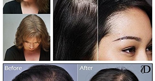 Alopecia & Hair Loss